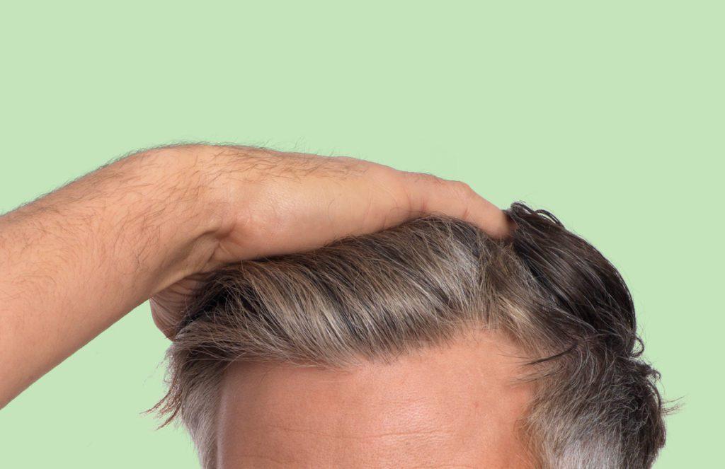 Hårmineralanalys mot huvudvärk, muskelvärk, näringsbrist.
